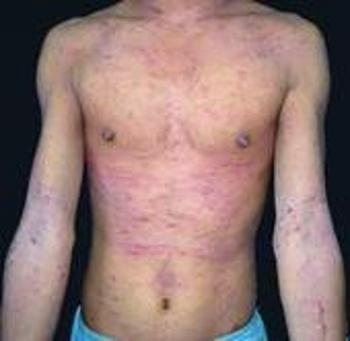 胸部银屑病的危害有哪些